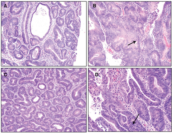 Representative figures of H&E staining of colon of PIRC rats (200x magnification) following: