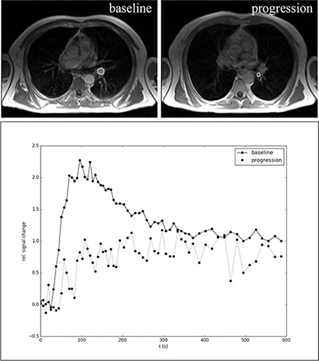 Representative example of DCE-MRI in a NSCLC patient during bevacizumab maintenance therapy at baseline and disease progression.