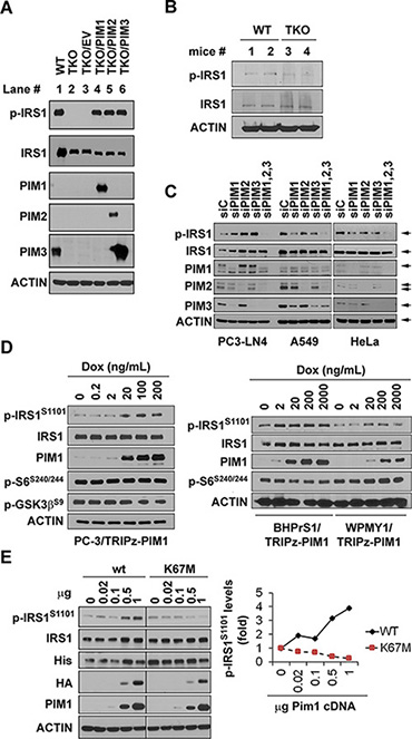 Expression of Pim1, 2, and 3 kinases control IRS1S1101 phosphorylation.