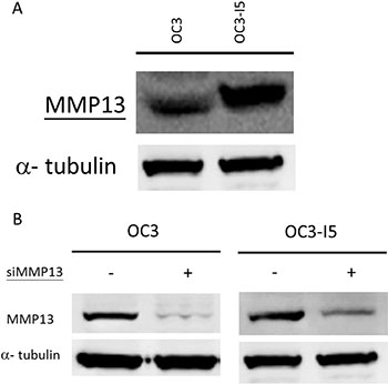 Expression of MMP-13 in oral cancer OC3 and metastasis-enhanced OC3-I5 and the knockdown efficiency of siMMP-13.