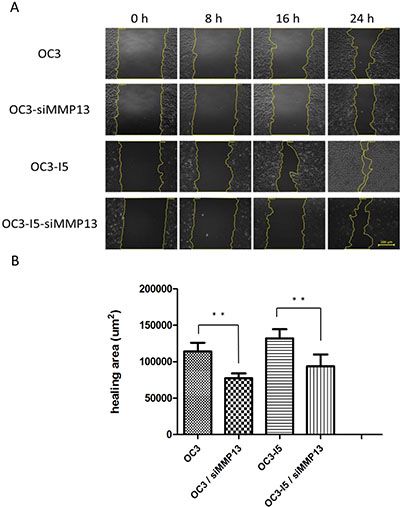 After siMMP-13 knockdown, the wound-healing migration ability was downregulated in the oral cancer cells.
