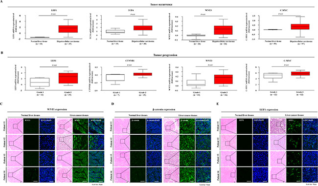 Expression profiles of Wnt/β-catenin signaling components in liver cancer patients.