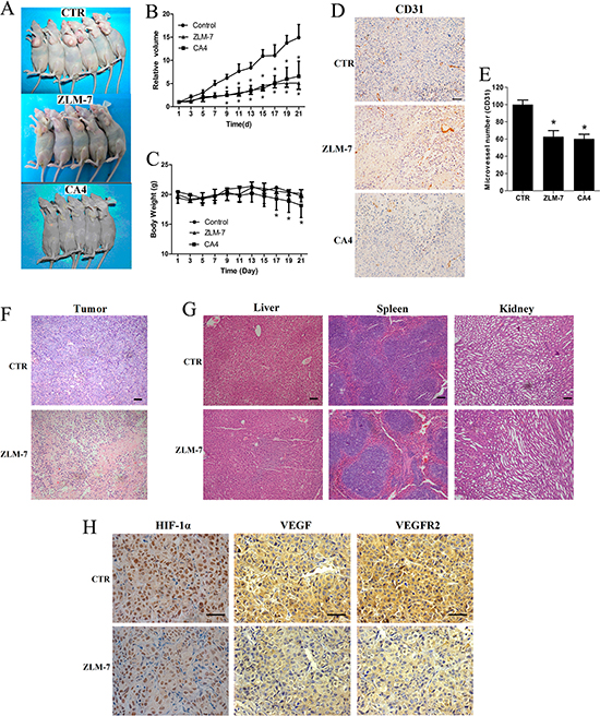 ZLM-7 inhibited tumor growth and neoangiogenesis in MCF-7 breast cancer xenografts.