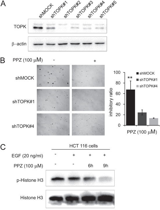 Knocking down TOPK attenuates the inhibitory effect of colon cancer cell growth by pantoprazole.