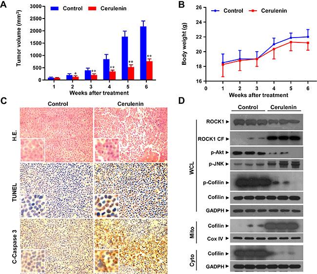 Cerulenin inhibits tumor growth in a jurkat xenograft mouse model.