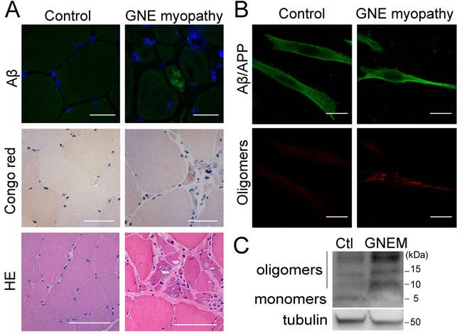 Intracellular Aβ aggregates in GNE myopathy.