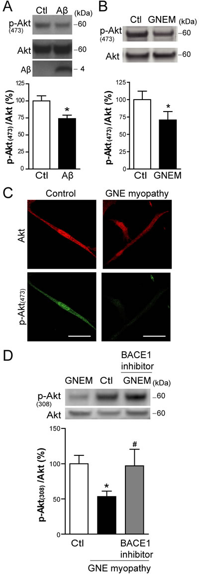 Aβ impairs basal Akt activation in skeletal muscle cells.