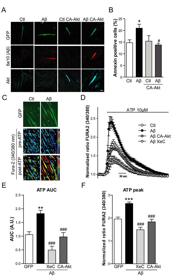 Aβ induced apoptosis and enhanced IP