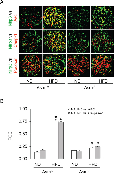 Attenuation of HFD-induced inflammasome formation in glomeruli of Asm+/+ and Asm-/- mice fed a normal diet or high fat diet.