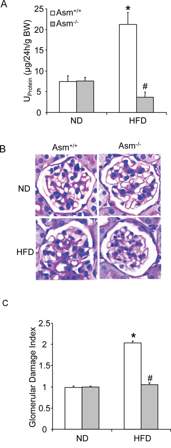 Effects of the normal diet and high fat Diet on glomerular injury in Asm+/+ and Asm-/- mice.