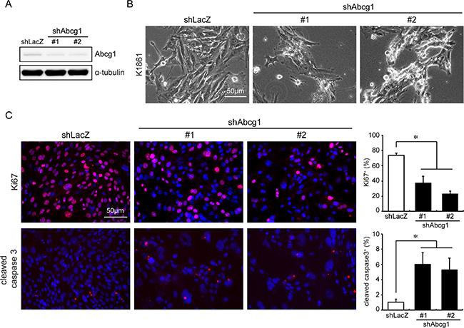 Abcg1 knockdown reduces NPcis glioma cell growth in vitro.