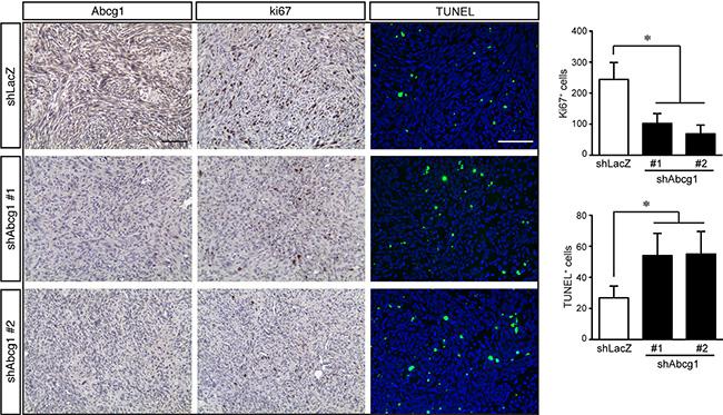 Abcg1 knockdown increases glioblastoma apoptosis in vivo.