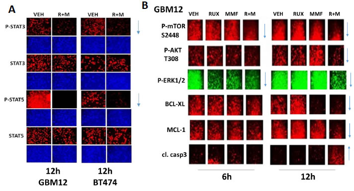 [MMF + Ruxolitinib] interact to cause a prolonged suppression of STAT3, STAT5, ERK1/2, AKT and mTOR phosphorylation.