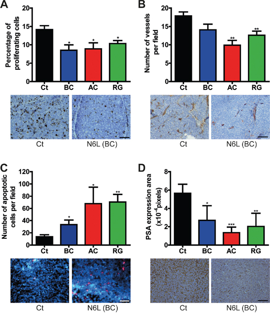 N6L inhibited cell proliferation, angiogenesis and PSA expression and induced apoptosis in vivo.