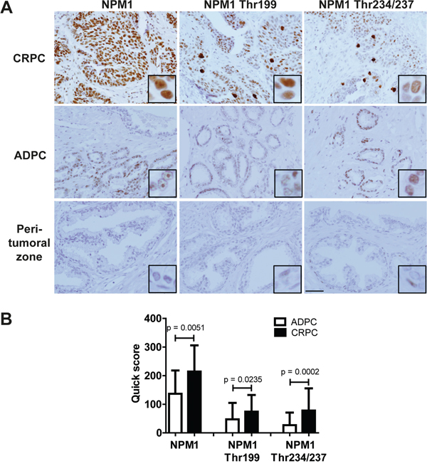 NPM1 and its two Thr199 and Thr234/237 phosphorylated forms were overexpressed in human CRPC.