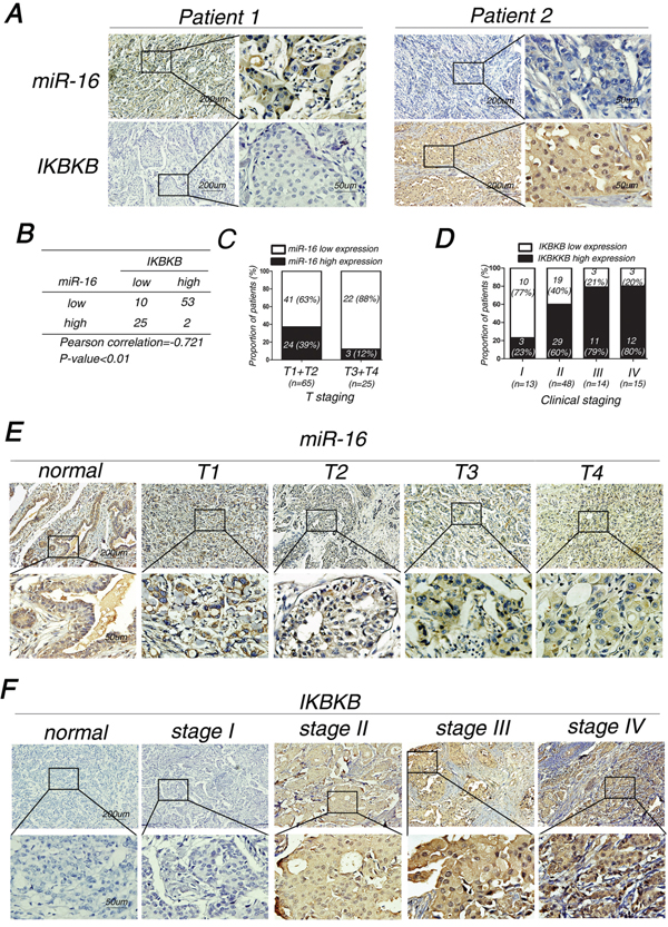 MiR-16 expression is inversely correlated with IKBKB expression and their expression levels are associated with clinicopathological characteristics of breast cancer patients.