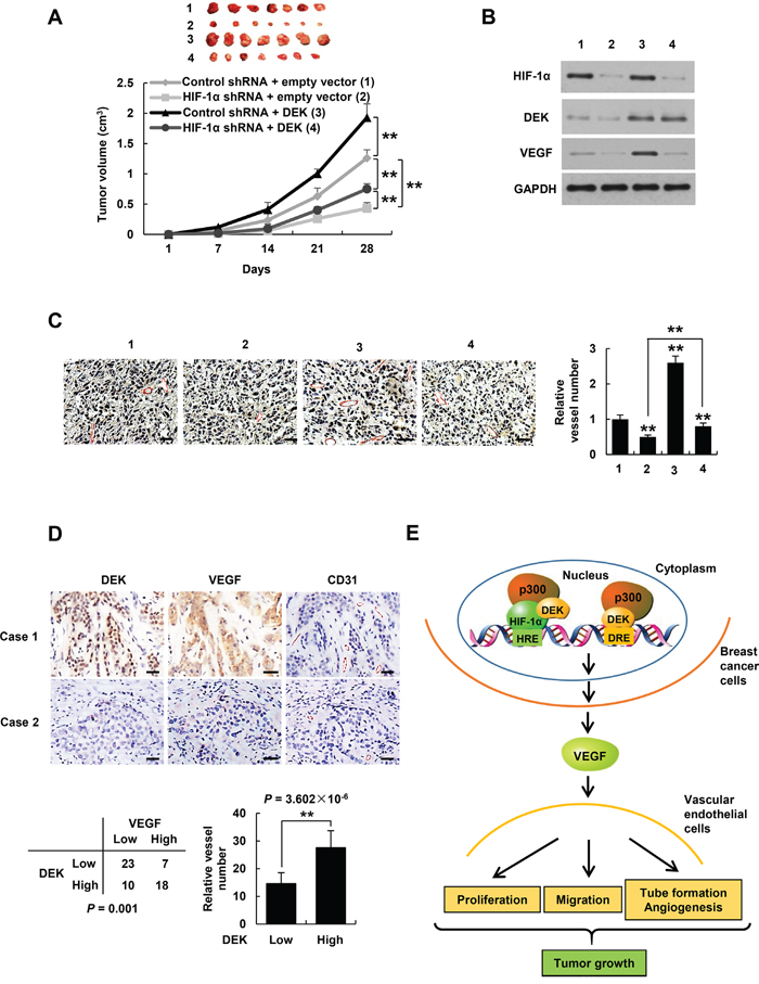 DEK controls tumor angiogenesis in HIF-1α-dependent and -independent manners.