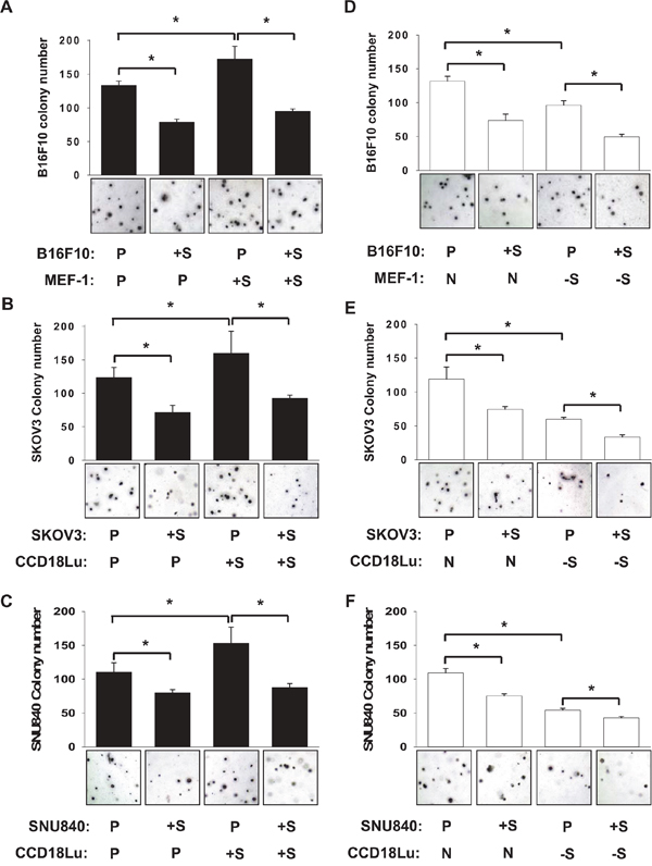 Role of fibroblast SIRT1 in cancer cell colonization.