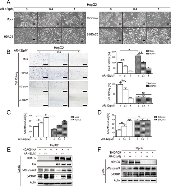 AR-42 induced HepG2 cell apoptosis in vitro.