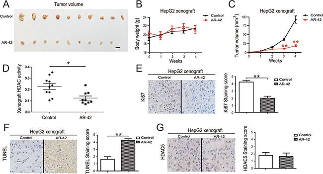 Effect of AR-42 on tumor xenograft models.