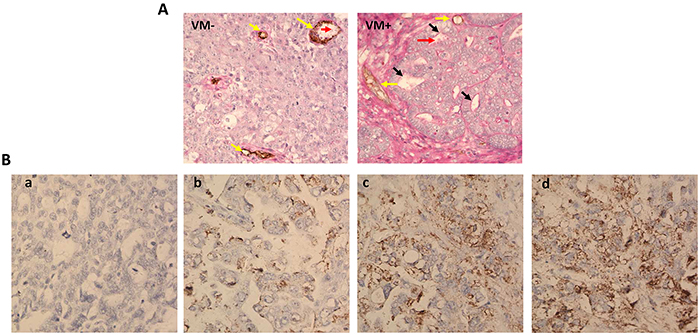 VM and uPA expression in ovarian cancer tissues.