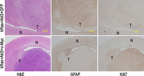 c-Myc promotes tumor cell proliferation with inhibition of cell differentiation.