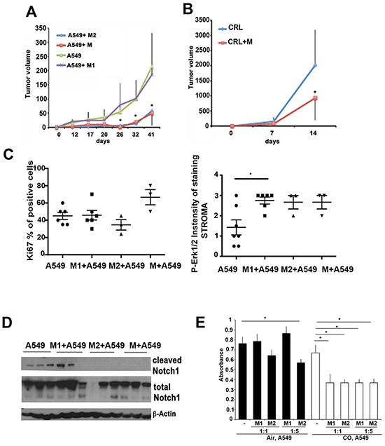 Macrophage polarization influences lung cancer initiation and progression.