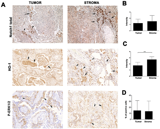 Expression of HO-1, Notch1 and P-Erk1/2 in the stroma of lung cancer patients.