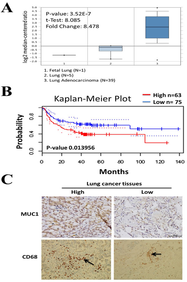 Clinical association of Muc-1 in lung cancer patients.