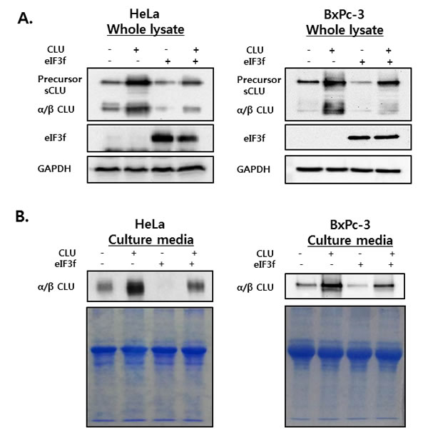 sCLU expression and secretion in whole cell lysates and culture media.