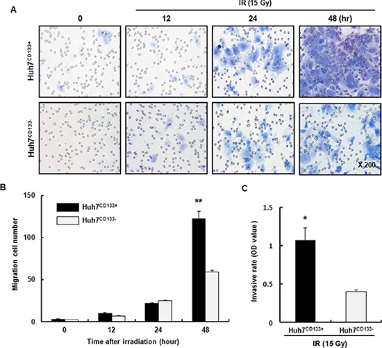 Migration and invasion assay of Huh7CD133+ and Huh7CD133− cells after 15- Gy irradiation.