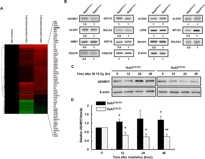 cDNA microarray analysis of the expression profiles of metastasis-associated genes in Huh7CD133+ and Huh7CD133− cells at 12 and 24 h after 15- Gy irradiation.
