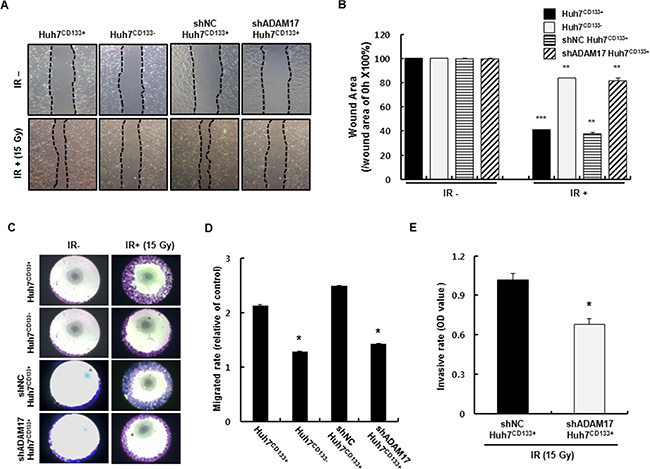 Changes in shADAM17CD133+ and shNCCD133+ cell migration after 15- Gy irradiation.