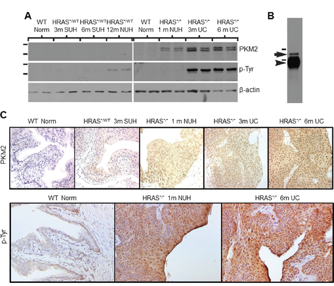 Expression levels and subcellular localization of PKM2 in low-grade urothelial lesions induced by activated HRAS.