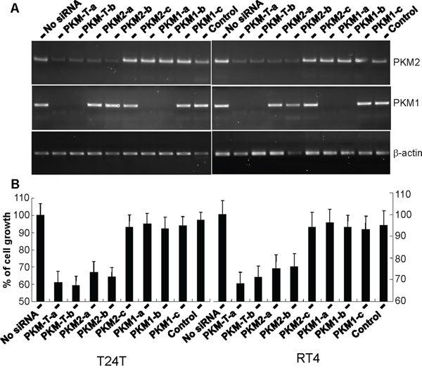 Inhibition of urothelial carcinoma cell proliferation via down-regulation of PKM2 but not PKM1.