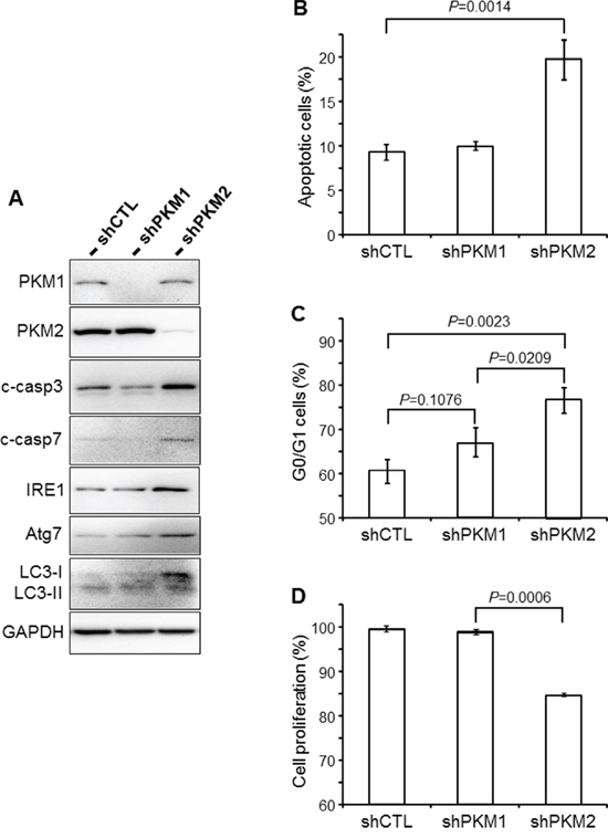 Cellular effects of PKM2 knockdown.