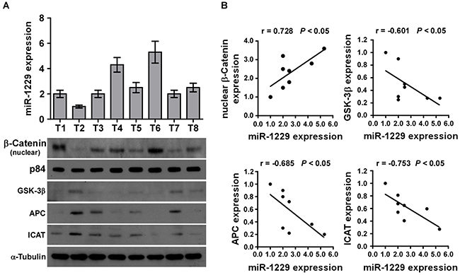 MiR-1229 levels correlate with activation of Wnt/β-catenin signaling, β-catenin nuclear accumulation, and GSK-3β, APC, and ICAT expression in clinical breast cancer clinical tissues.