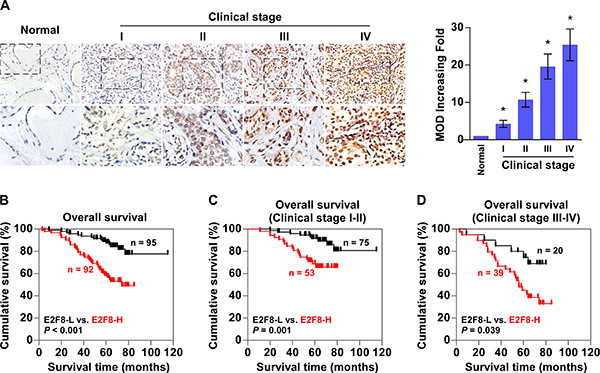 Upregulation of E2F8 correlates with progression and poor prognosis in breast cancer.