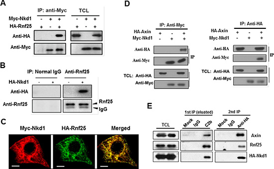 Rnf25 interacts with Nkd1-Axin complex.