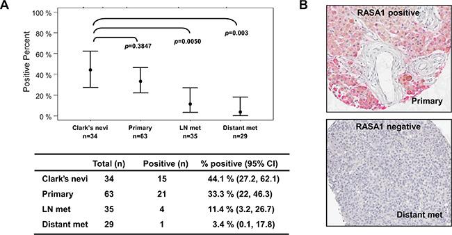 RASA1 is down-regulated in metastatic melanomas.