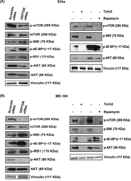 DEPTOR silencing inhibited the PI3K-AKT pathway.