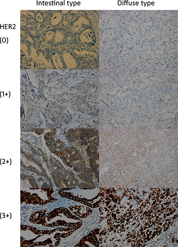 HER2 immunohistochemistry of gastric cancer tissues stratified by scores and Laurén classification.