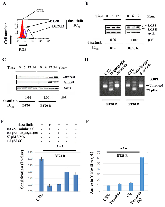 Drug-induced ER-stress and autophagy contribute to acquired resistance to dasatinib.