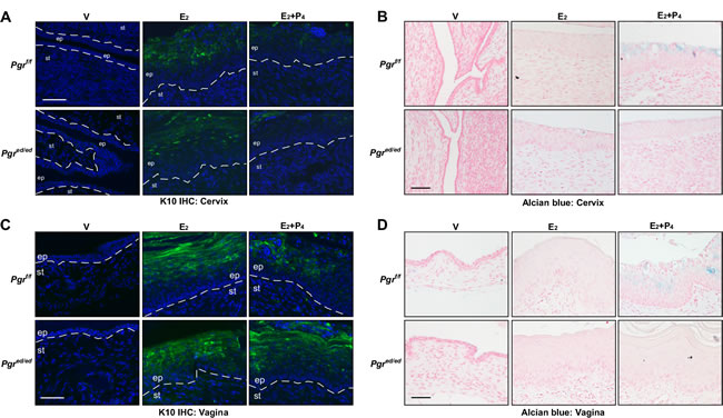 Epithelial PR is required for P