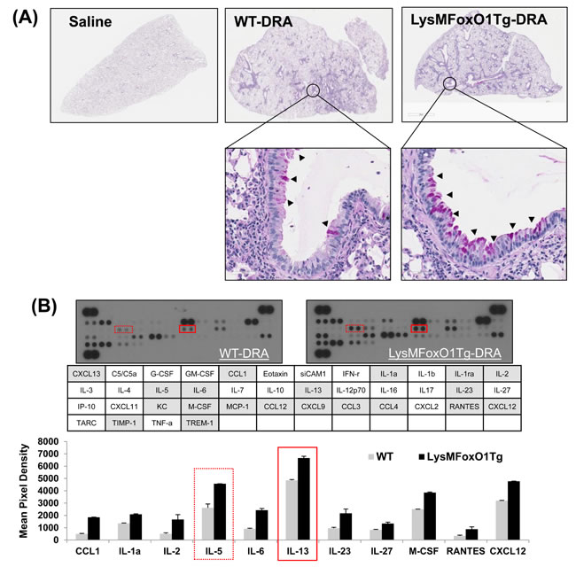 LysMFoxO1Tg mice showed impaired development of DRA-induced allergy airway inflammation.