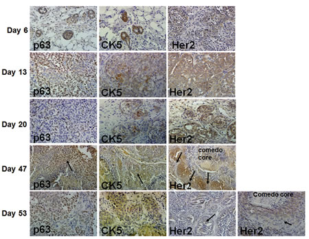 Immunohistochemical analysis of p63, CK5 and Her2/neu in MCF10DCIS.com xenografts.