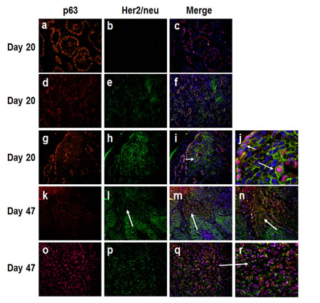 Immunofluorescence analysis of p63 and Her2/neu in MCF10DCIS.com xenografts.
