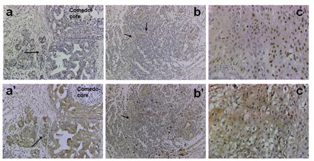 Immunohistochemical analysis of p63 and Her2/neu in clinical comedo-DCIS with recurrence.