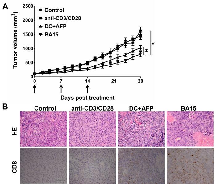 Suppression of tumor growth
