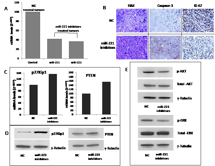 miR-221 activity and targets silencing in retrieved MM xenografted tumors.